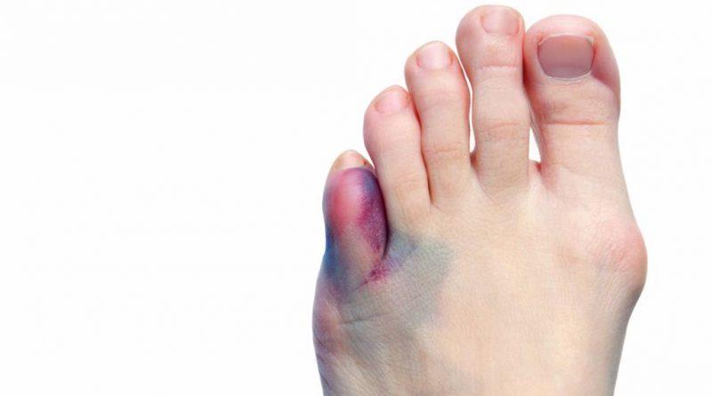 Kleiner Fußzeh Gebrochen